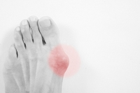 What You Need to Know About Your Bunion