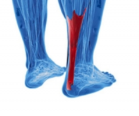 Common Causes of Achilles Tendon Injuries