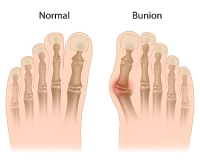 Types of Bunions