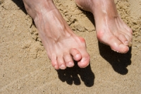 What Causes a Hammertoe?